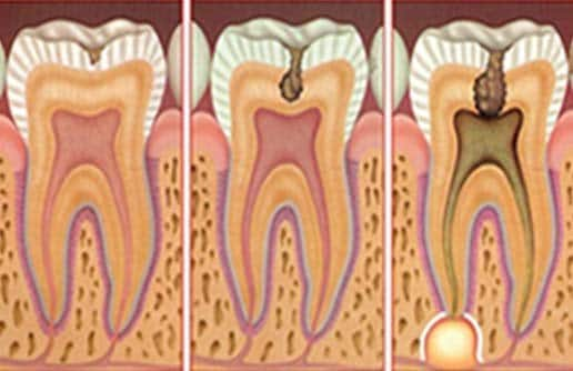 CARIES AND PROPHYLACTICS